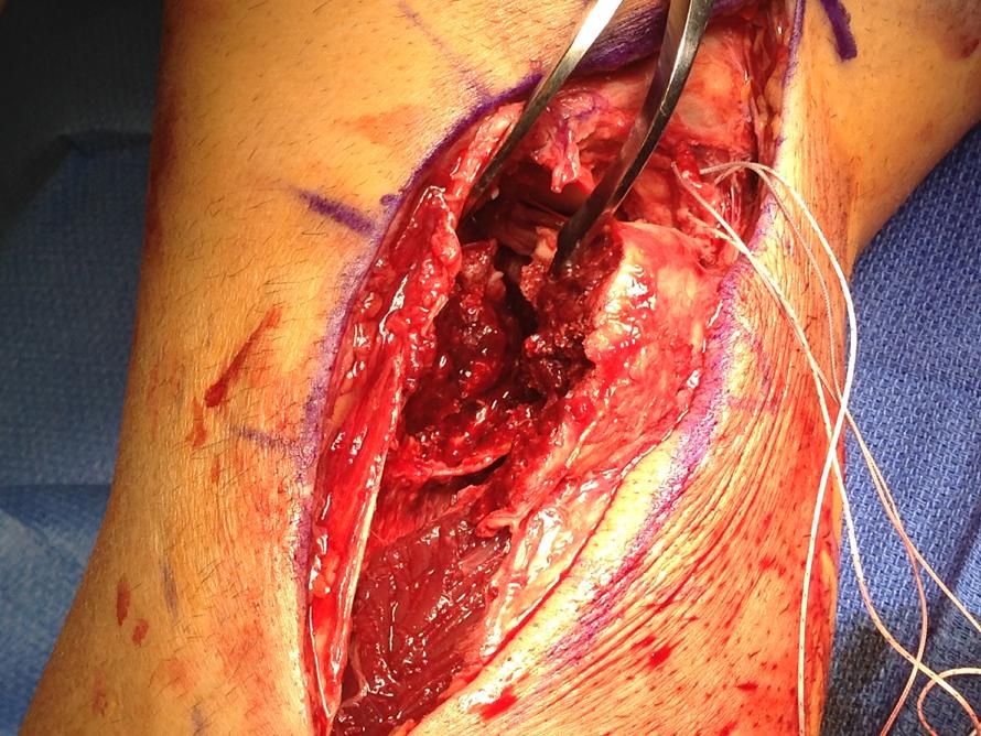 tibial plateau surgery